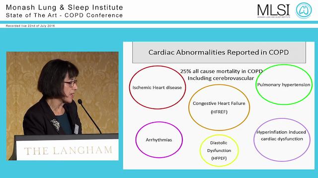 COPD Comorbidity Prof Christine McDonald