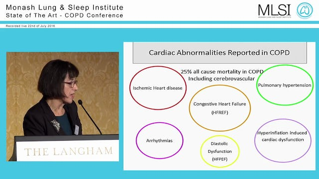 COPD Comorbidity Prof Christine McDonald
