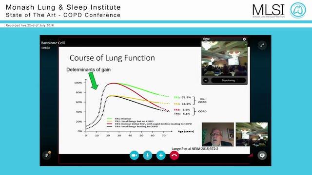 Is COPD always progressive Prof Bartolome Celli (via Skype)