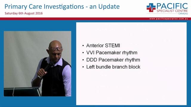 ECG Interpretation Prof Rohan Jayasin...