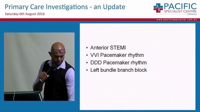 ECG Interpretation Prof Rohan Jayasinghe Director of Cardiology Gold Coast University Hospital