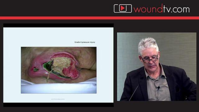 Negative Pressure Wound Therapy Gary Bain