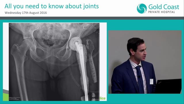 Heal with Steel The Neck of Femur Fracture Epidemic and Post Op Complications Dr Lochlin Brown