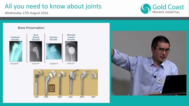 Recent advances in Shoulder arthroplasty Dr SL Ezekiel Tan