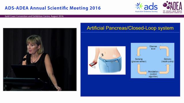 Artificial Pancreas during Type 1 Dia...