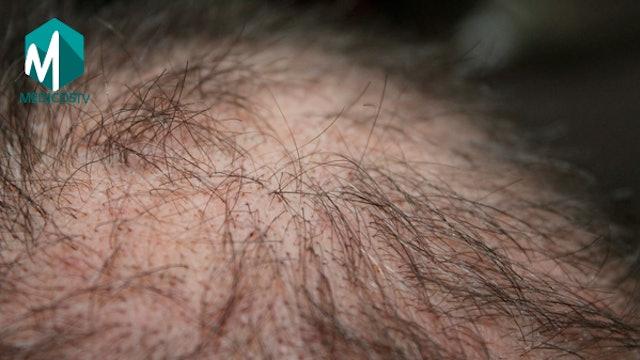 S1-Clip 22 - Alopecia en Mujeres