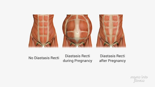 Diastasis Recti: do you have an abdominal separation?