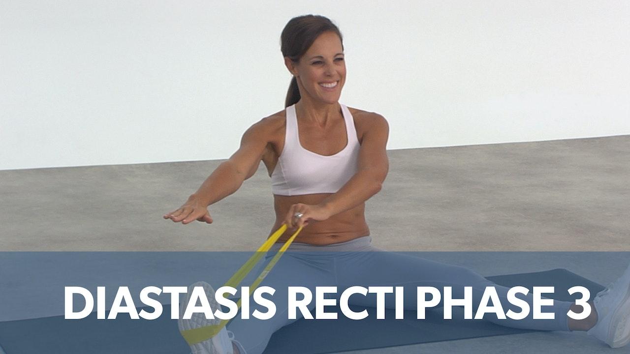 Diastasis Recti Phase 3