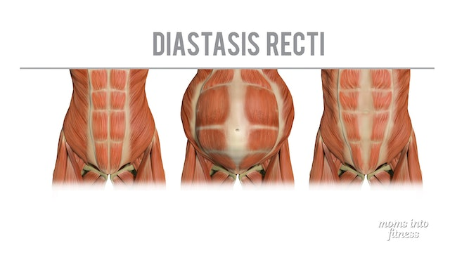 Pregnancy: can I exercise with diastasis recti (ab separation)?