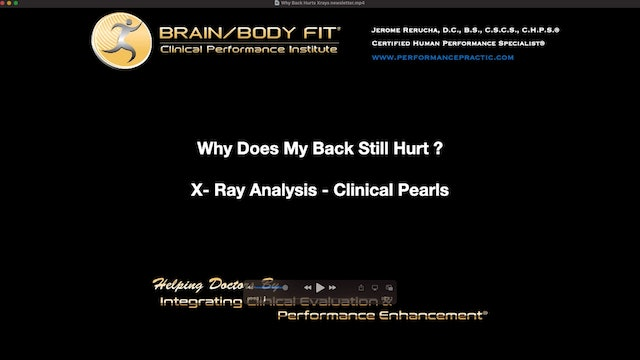 Why Does My Back Still Hurt - X-Ray Analysis & Clinical Pearls