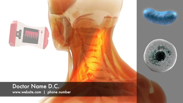 Customized LLLT Patient Education Video - Neck & Shoulder