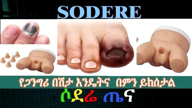 Gangrene causes and symptoms