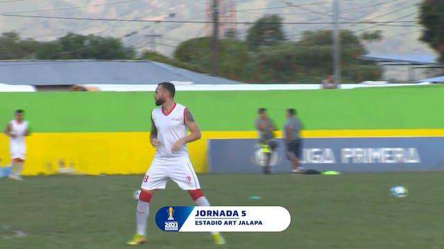 ESP | Liga Primera R5: ART Jalapa vs ...