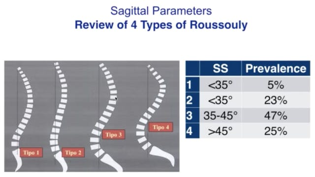 Sagittal Parameters and Treatment Part 2