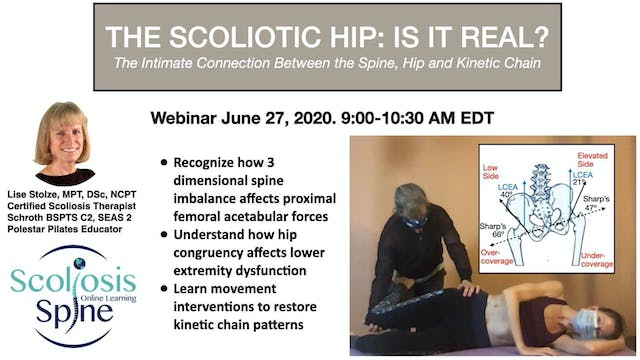 Scoliotic Hip: Is It Real? Spine,Hip,Kinetic Chain