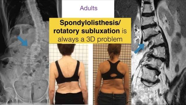 Adult Spinal Deformity Part 1
