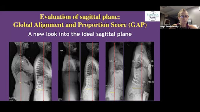 Radiology for Scoliosis Part 3
