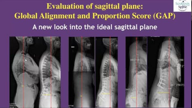Webinar Part 3: Radiology for Scoliosis
