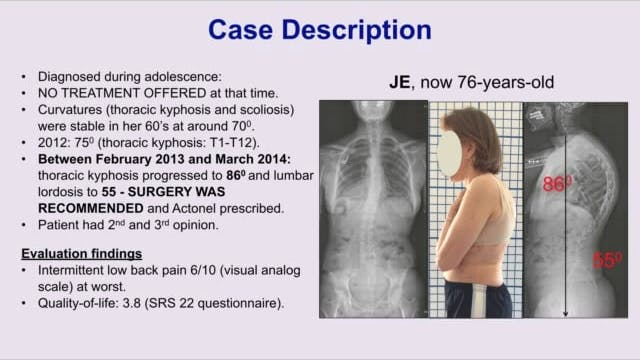 Treatment of Adult with Hyperkyphosis Case Report by Andrea Lebel, PT, Canada