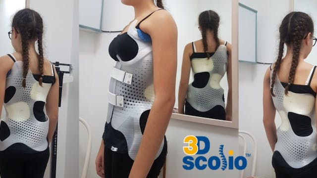 3D Bracing for Scoliosis