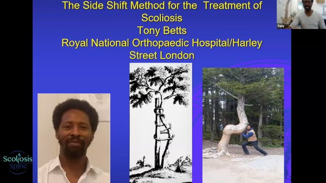 Side Shift Method for Scoliosis with Tony Betts