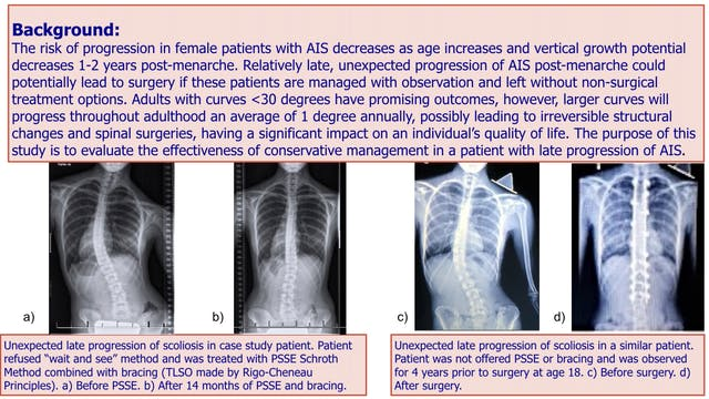 Late Progression of AIS Case Study by Andrea Lebel, M.Sc. PT