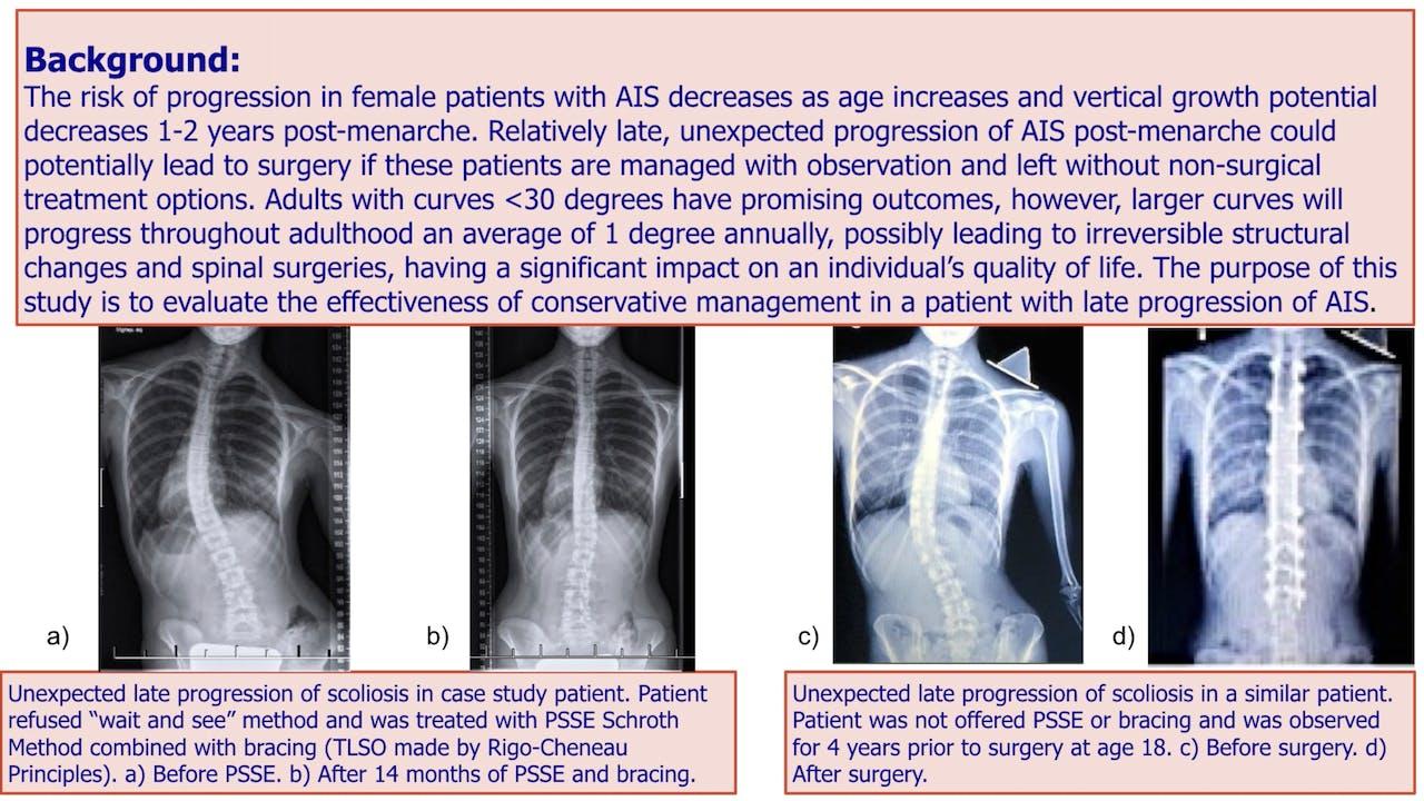 Late Progression of AIS Case Study by Andrea Lebel, M.Sc. PT