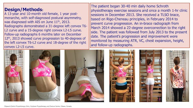 Late Progression of AIS Case Study by Andrea Lebel, Physiotherapist, Canada