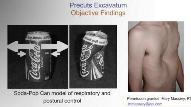Treatment of Pectus Excavatum - Case Report by Dr. Hagit Berdishevsky