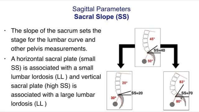 Sagittal Parameters and Treatment Part 3