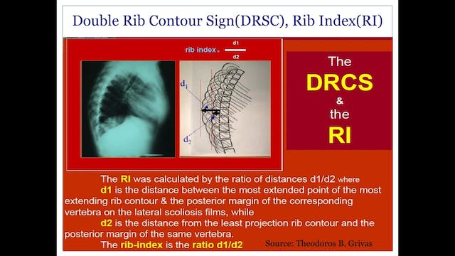Rib Index Case Study by Andrea Lebel, Physiotherapist, Canada