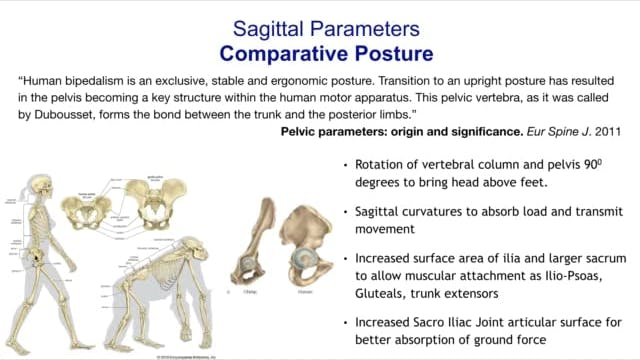 Sagittal Spino-Pelvis Parameters & Treatment Part1