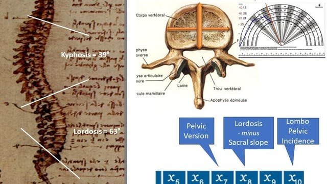 Lyon Method - Mathematics of Scoliosis