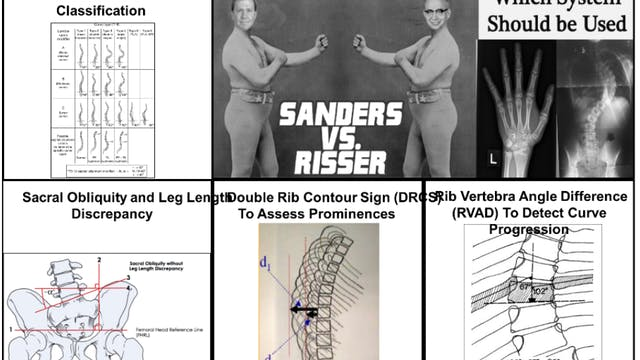 Webinar Part 1: Radiology of the Spine&Pelvis