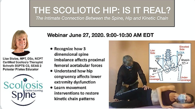 HANDOUT--Scoliotic-Hip-Is-It-Real?-with-Lise-Stolz.pdf