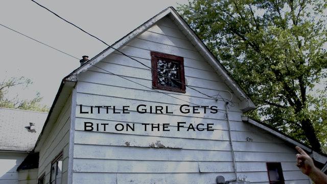 Little Girl Gets Bit on Face