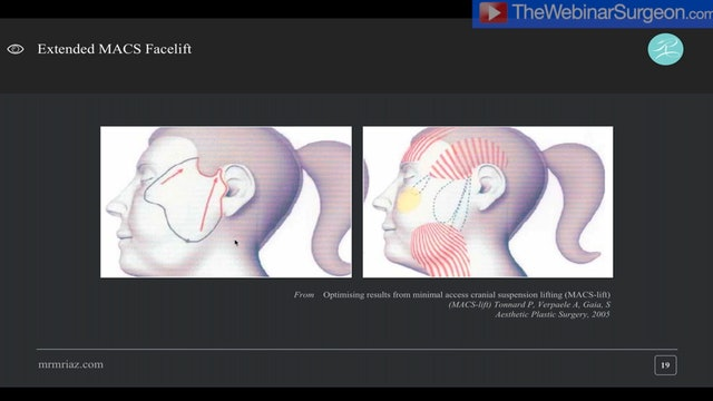 'R' Facelift Technique - Webinar, Muhammad Riaz