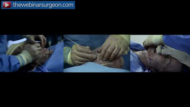 Placement of Trampoline Platysmaplasty, Greg Mueller