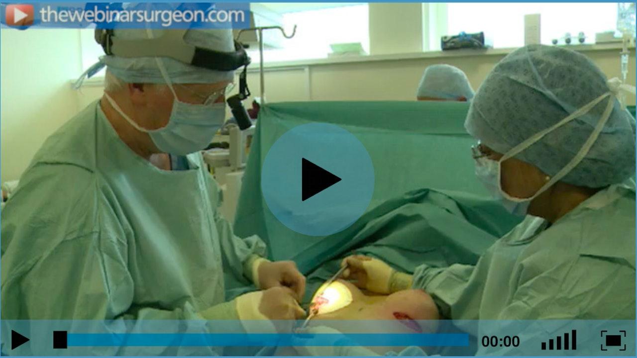 Breast Augmentation: Polyurethane Surface Implants