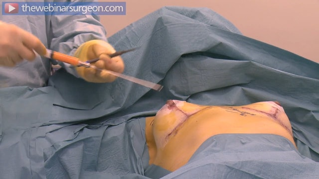 Fat Grafting to Upper Breast, J Frame