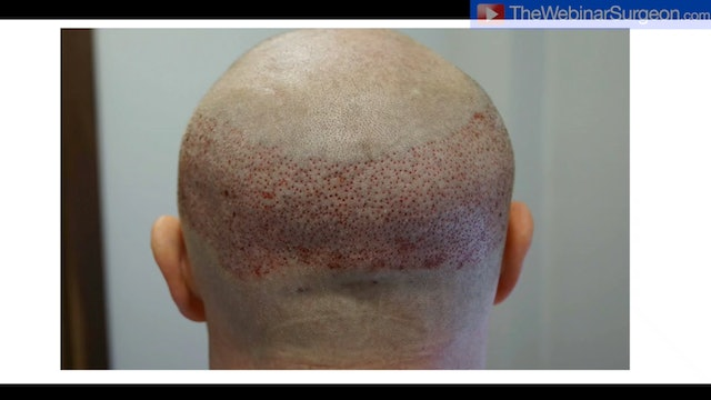 Current Hair Transplant Techniques, Greg Williams