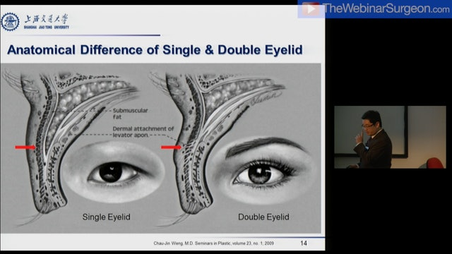 Asian Upper Blepharoplasty, A Chiang