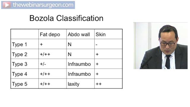 Abdominoplasty, Mark Ho-Asjoe