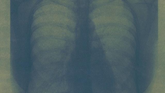 Absence - Cyanotype