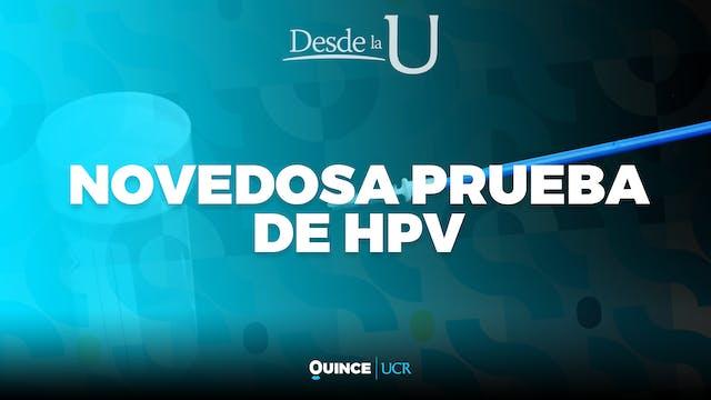 Desde la U: Novedosa prueba de HPV