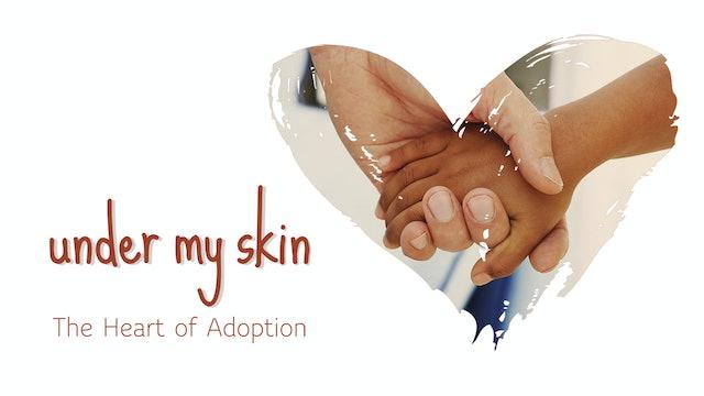 Under My Skin - The Heart of Adoption