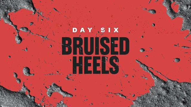 Day 6: Bruised Heels