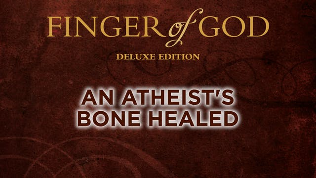 An Atheist's Bone Healed