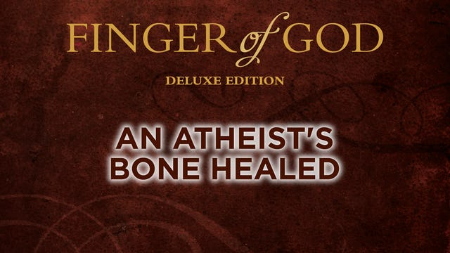An Atheist's Bone Healed